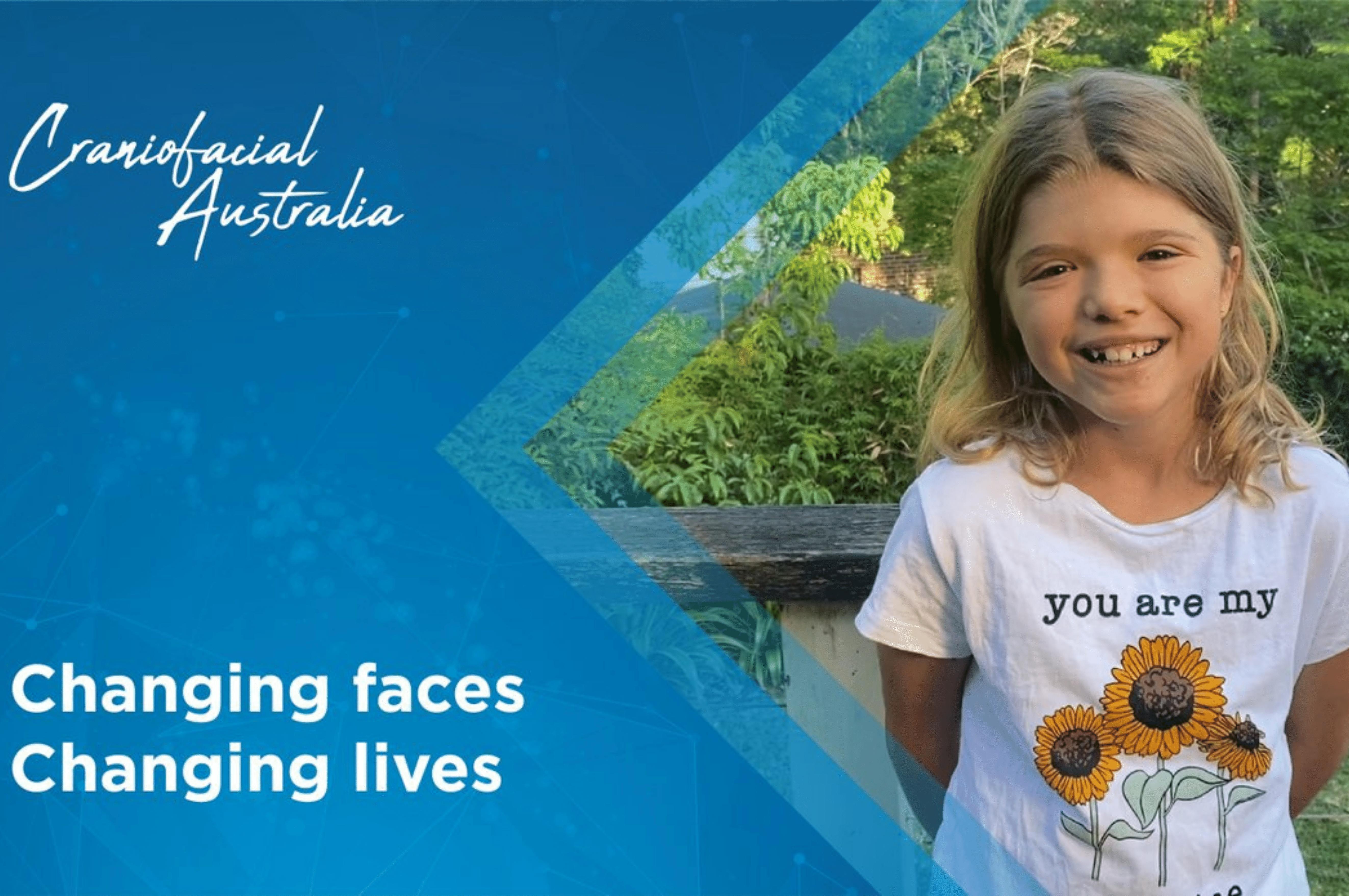 Craniofacial Australia Sweet Support